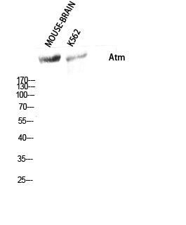 Fig. Western Blot analysis of Mouse-BRAIN K562 cells using Atm Polyclonal Antibody diluted at 1:500.