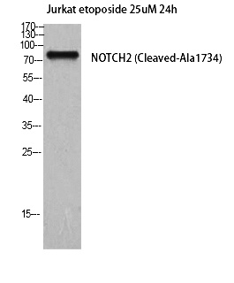 Fig. Western Blot analysis of Jurkat cells using Cleaved-Notch 2 (A1734) Polyclonal Antibody diluted at 1:2000.