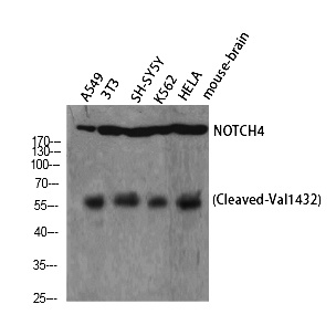 Fig. Western Blot analysis of A549 NIH-3T3 SH-SY5Y K562 HELA cells using Cleaved-Notch 4 (V1432) Polyclonal Antibody diluted at 1:1000.