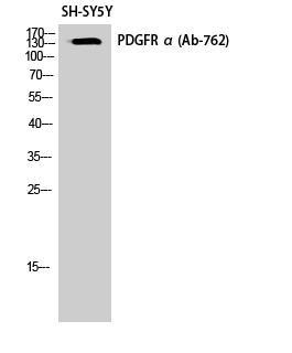 Fig. Western Blot analysis of SH-SY5Y cells using PDGFR-α Polyclonal Antibody.