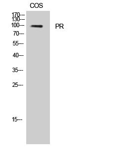 Fig. Western Blot analysis of Jurkat cells using PR Polyclonal Antibody.