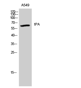 Fig. Western Blot analysis of A549 cells using tPA Polyclonal Antibody. Secondary antibody was diluted at 1:20000.