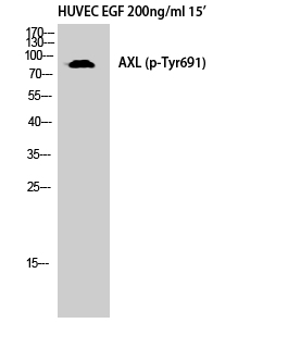 Fig. Western Blot analysis of HuvEc cells using Phospho-Axl (Y691) Polyclonal Antibody diluted at 1:500.