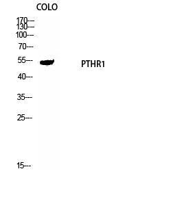 Fig. Western Blot analysis of COLO cells using PTH/PTHrP-R Polyclonal Antibody diluted at 1:1000.