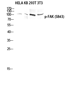 Fig.1. Western blot analysis of HELA KB 293T 3T3 lysis using Phospho-FAK (S843) antibody. Antibody was diluted at 1:1000.