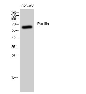 Fig. Western Blot analysis of 823-AV cells using Paxillin Polyclonal Antibody diluted at 1:500.