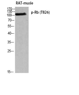 Fig. Western blot analysis of RAT-musle using p-Rb (T826) antibody. Antibody was diluted at 1:500.