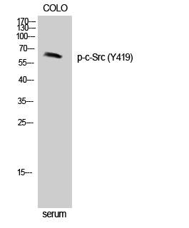 Fig. Western Blot analysis of Jurkat cells using Phospho-c-Src (Y419) Polyclonal Antibody diluted at 1:500.