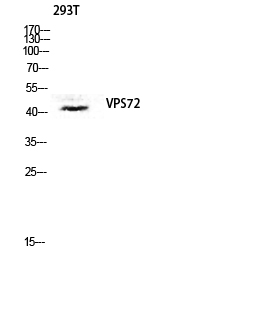 Fig. Western blot analysis of 293T lysis using VPS72 antibody. Antibody was diluted at 1:1000. Secondary antibody was diluted at 1:20000.