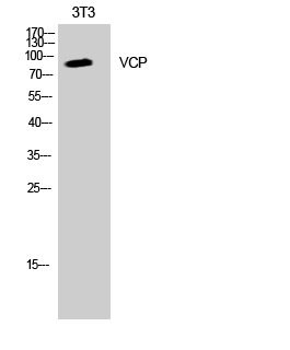 Fig. Western Blot analysis of K562 cells using VCP Polyclonal Antibody diluted at 1:2000. Secondary antibody was diluted at 1:20000.