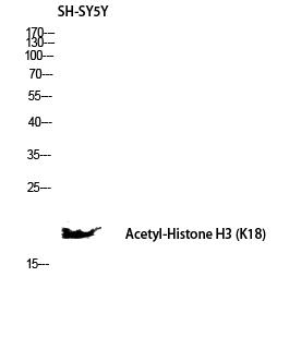 Fig. Western blot analysis of SH-SY5Y lysis using Acetyl-Histone H3 (K18) antibody. Antibody was diluted at 1:1000. Secondary antibody was diluted at 1:20000.