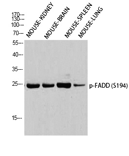 Fig. Western blot analysis of Mouse-KIDNEY Mouse-BRAIN Mouse-SPLEEN Mouse-LUNG using p-FADD (S194) antibody. Antibody was diluted at 1:1000.