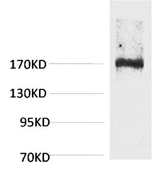 Fig.1. Western blot analysis of Rat Liver Tissue using EPG5 Polyclonal Antibody. Secondary antibody (catalog#: A21020) was diluted at 1:20000.
