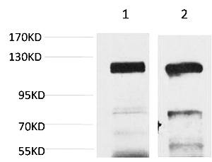 Fig.1. Western blot analysis of 1) Human Brain Tissue, 2) Rat Brain Tissue using GluR4 Polyclonal Antibody. Secondary antibody (catalog#: A21020) was diluted at 1:20000.