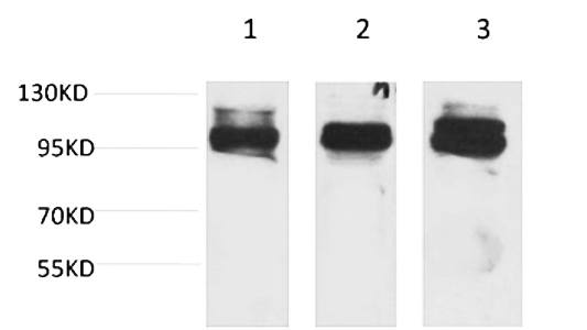 Fig.1. Western blot analysis of 1) K562,  2) Mouse Heart Tissue, 3) Rat Heart Tissue with STAT2 Rabbit pAb diluted at 1:2000.