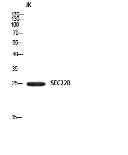 Fig.1. Western blot analysis of JK using SEC22B antibody. Secondary antibody (catalog#: A21020) was diluted at 1:20000.