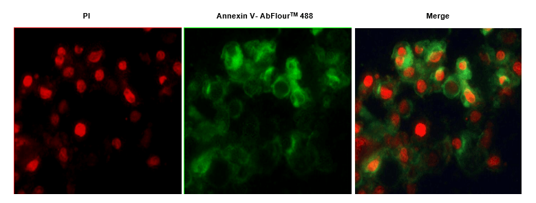 Fig.1. Hela cells were induced with camptothecin for 24 hours and stained with Annexin V- AbFluor™ 488 Apoptosis Detection Kit. The cell is a late stage apoptotic/necrotic cell with both Annexin V- AbFluor™ 488 and PI staining (green membrane with red fragmented nucleus).