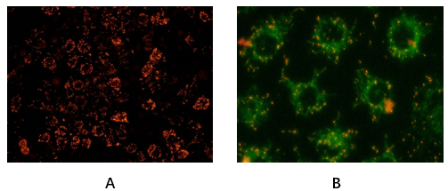 Fig. Hela cells stained with Abbkine Mitochondrial Membrane Potential Assay Kit (JC-1).  A: Red fluorescence indicates healthy mitochondria, B: Green fluorescence indicates mitochondria in poor health (30min incubation in 20uM CCCP).