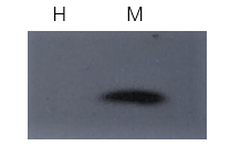 Fig. Western blot of specific proteins fraction using Abbkine ExKine™ Total Membrane Protein Extraction Kit. Sample: 293T cells lysate. H: hydrophilic phase extraction was analyzed using Na+/K+-ATPase Antibody. M: Membrane protein extraction was analyzed using Na+/K+-ATPase Antibody.