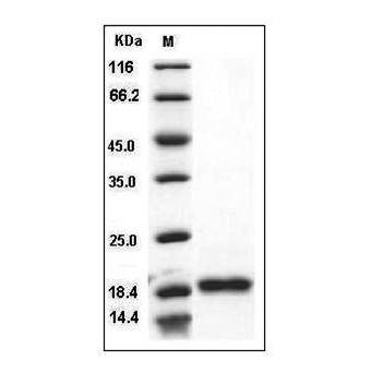 Fig.SDS-PAGE analysis of Human BAFF protein.