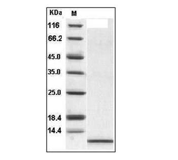 Fig.SDS-PAGE analysis of Human IL-8 protein (aa 23-99).