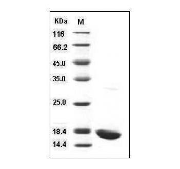 Fig.SDS-PAGE analysis of Human IL-1 beta protein.