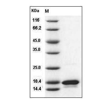 Fig.SDS-PAGE analysis of Human TNF-beta protein.