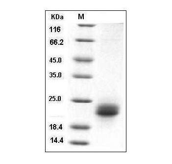 Fig.SDS-PAGE analysis of Human VEGF-C protein, His Tag.