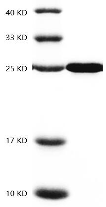Fig.SDS-PAGE analysis of Human CNTF protein.