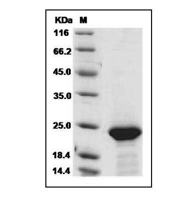 Fig.SDS-PAGE analysis of Human FGF21 protein, His Tag.