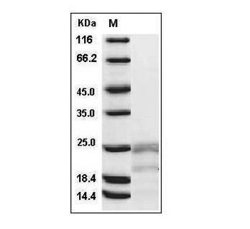 Fig.SDS-PAGE analysis of Human IFN-gamma protein.