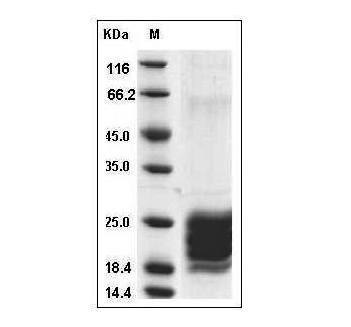 Fig.SDS-PAGE analysis of Human IL-9 protein, His Tag.