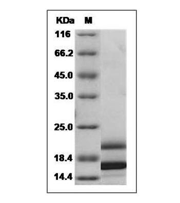 Fig.SDS-PAGE analysis of Human IL-17 protein, His Tag.