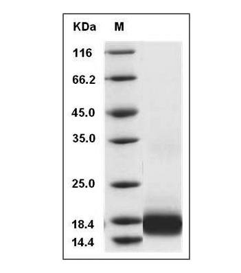 Fig.SDS-PAGE analysis of Human IL-17 protein.