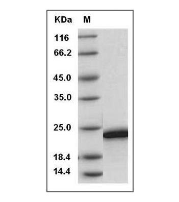 Fig.SDS-PAGE analysis of Human FGF19 protein.