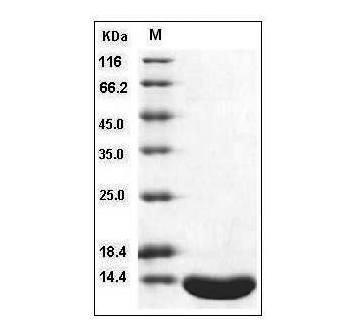 Fig.SDS-PAGE analysis of Human Leptin protein.
