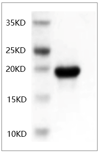 Fig.SDS-PAGE analysis of Human IL-6 protein.