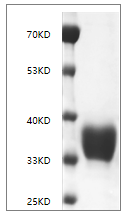 Fig. SDS-PAGE analysis of Human CD274/PD-L1 protein, His tag.