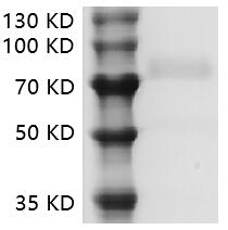 Fig.SDS-PAGE analysis of Human CD19 protein.