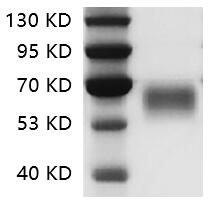 Fig.SDS-PAGE analysis of Human CD28 protein.