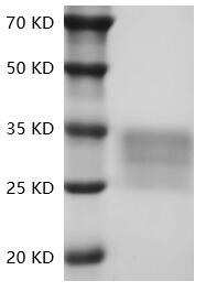 Fig.SDS-PAGE analysis of Human CD7/GP40 protein