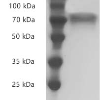 Fig.SDS-PAGE analysis of Human CD30/TNFRSF8 protei