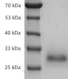 Fig.SDS-PAGE analysis of Human CD40/TNFRSF5 protein, His tag.