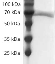 Fig.SDS-PAGE analysis of Human CD73/NT5E protein, His tag.