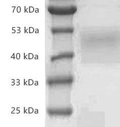 Fig.SDS-PAGE analysis of Human CD84/SLAMF5 protein, His tag.