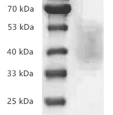 Fig.SDS-PAGE analysis of Human CD226/DNAM-1 protein, His tag