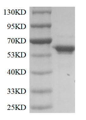 Fig. SDS-PAGE analysis of TdT.