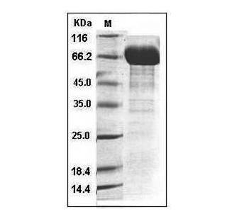 This is SDS-PAGE analysis of Human IL-12B protein, Fc Tag