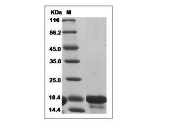 This is SDS-PAGE analysis of Human IL-18 protein