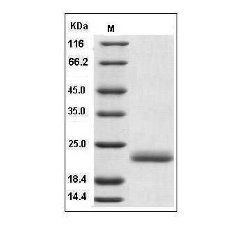 This is SDS-PAGE analysis of Human IL-1 alpha protein